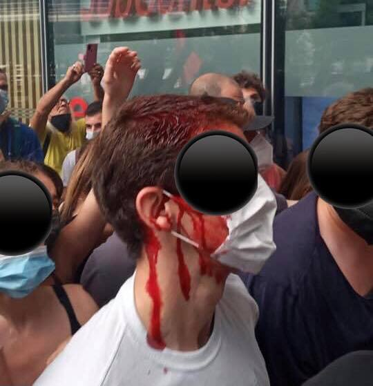 Effetti collaterali della mala gestione della pandemia della Regione Lombardia